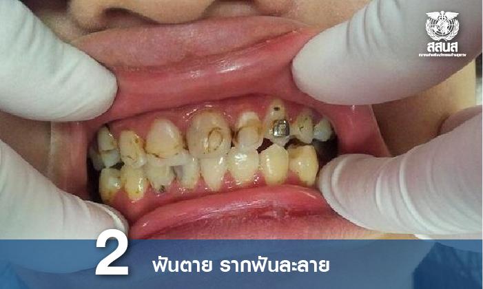 ฟันผุจากการจัดฟัน