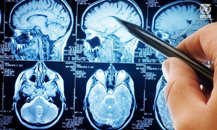 เซลล์สมองถูกทำลายสารให้ความหวาน